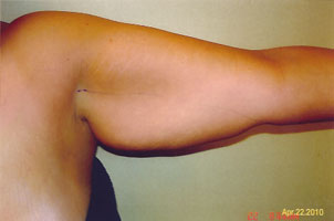 arm liposuction before