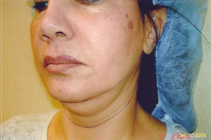 chin liposuction before