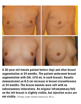 Breast Enhancement Boston Breast Augmentation Breast Implants