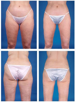 Liposuction Before & After's